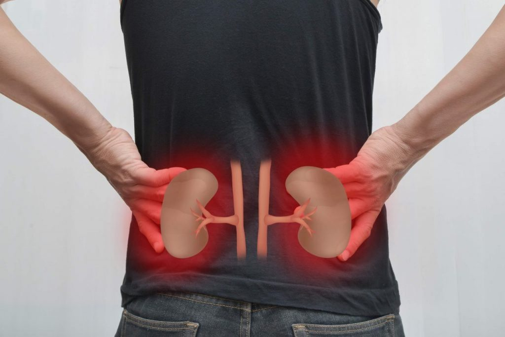 Operasan - Nierenschmerzen